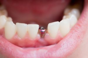 open mouth titanium post dental implant