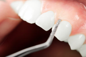 Close-up of exam for gum disease in Gahanna