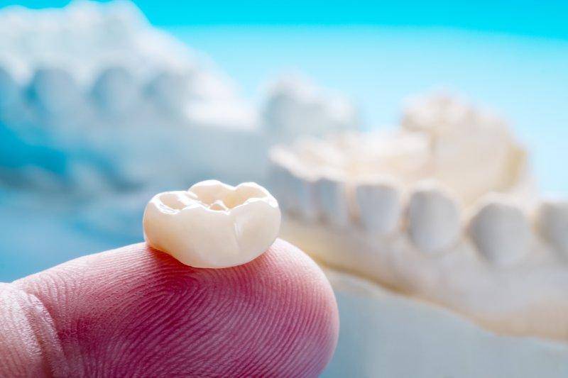 Model of dental crown in Gahanna